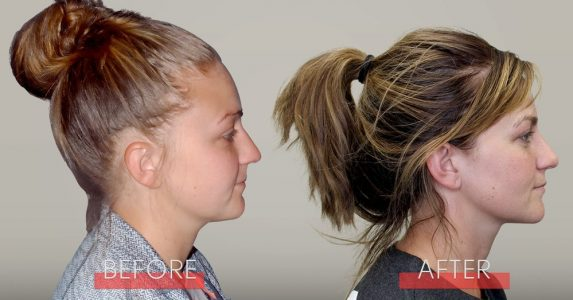 facial-growth-orthodontics-dr-green-courtney-before-after-agga